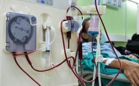 1 MDP el gasto en hemodiálisis