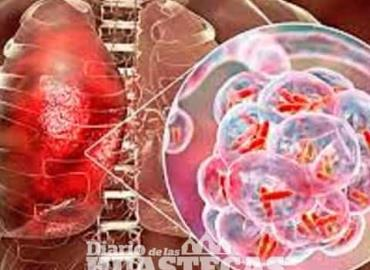 Dos casos de tuberculosis